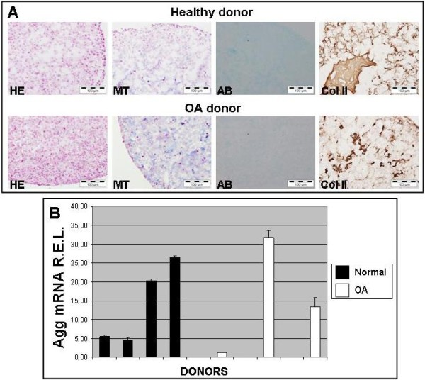 Evaluation of chondrocyte micropellets of donors using histological, immunohistochemical and molecular biology techniques. [ A ] Chondrocyte micropellets from normal and OA donors grown for 7 days in Dulbecco's Modified Eagle Medium (DMEM) supplemented with 10% FBS. Micropellets were stained with Hematoxylin-Eosin (HE), Alcian Blue (AB) and Masson′s Trichromic (MT). Immunodetection of type II collagen (Col II) was performed to detect this molecule which is characteristic of hyaline cartilage. [ B ] Aggrecan mRNA R.E.L. of healthy and OA chondrocyte micropellets measured by Real-Time Quantitative PCR (mean ± S.E.).