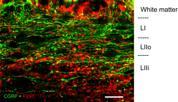 Confocal images at high magnification obtained from parasagittal spinal cord sections showing CGRP-IR (green) and P2X3-IR (red) varicosities in the superficial dorsal horn. P2X3-IR varicosities were present in considerable number in lamina I (LI) but were more highly concentrated in inner lamina II (LIIi). Scale bar = 20 μm.