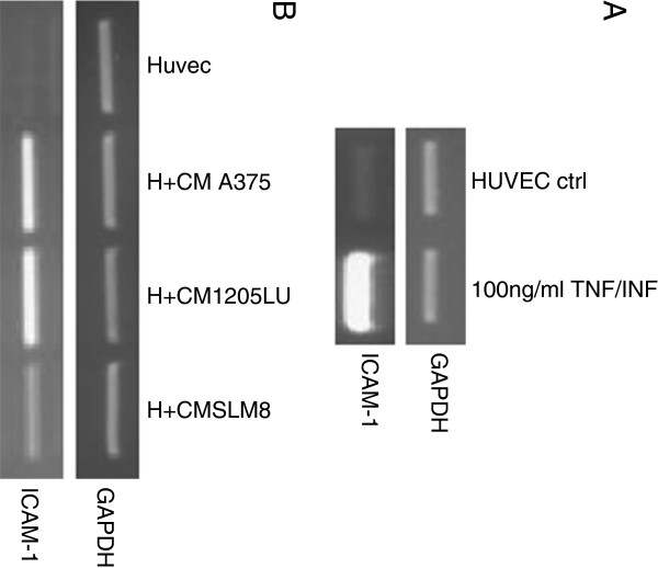 Conditioned mediums from melanoma cell lines enhance transcript expression of ICAM-1 in HUVEC cells. Semi-quantitative PCRs were performed to detect expression of ICAM-1 transcripts. A HUVEC cells were treated either with TNF-α and IFN-γ at 100ng/ml or B with conditioned medium from A375 (H+A375), SLM8 (H+SLM8) and 1205LU (H+1205LU) after 48hrs of cell culture. GAPDH is used as a DNA amount control. Data were obtained from 3 independent experiments.