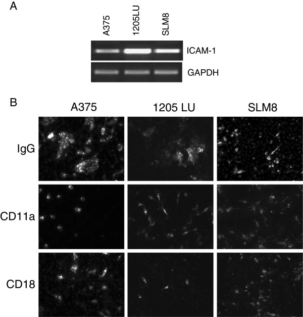 Effect of CD11 and CD18-blocking antibodies on the formation of clumps. A Semi-quantitative PCRs were performed to detect the expression of the ICAM-1 transcript. GAPDH is used as a DNA amount control. B A375, 1205LU and SLM8 cell lines were treated with 2 μg/ml of CD11a or CD18-blocking antibodies as indicated. Melanoma cells were labeled with DiO then fixed and labeled with DAPI prior to their observation under an epifluorescence microscope using a magnification of x10. Data were obtained from 3 independent experiments.