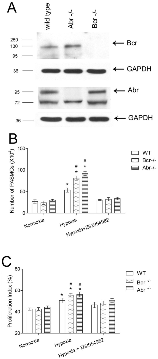 Bcr−/− and abr−/− PASMC show increased proliferation when exposed to hypoxia in vitro . A, Western blot analysis on PASMC lysates from wt , bcr−/− or abr−/− mice with anti-Bcr N20 antibodies or Abr antiserum. GAPDH, loading control. B, Third passage primary PASMC isolated from the intrapulmonary arteries of 5 different mice per genotype (1×10 4 cells/well) were synchronized by serum free medium for 24 hrs, then cultured in medium with 10% FBS for 5 days, after which cells were counted. The Rac inhibitor Z62954982 was added to the indicated samples. * p