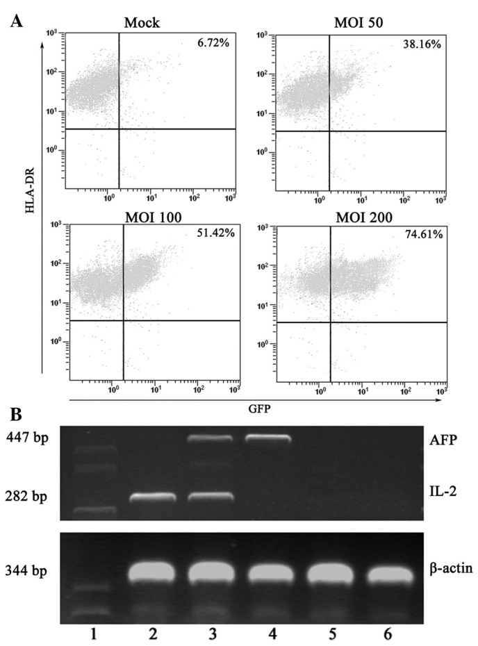 Transduction efficay of an Ad vector at various MOIs and surface marker expression of adenovirus-infected DCs. (A) Recombinant AdGFP was used to transduce day 7 immature DCs, which were then cultured for 48 h in the presence of GM-CSF and IL-4. On day 9, flow cytometric analysis of GFP expression by the Ad-GFP-DCs was carried out. Typically, > 74% of cells were GFP + at a MOI of 200. (B) IL-2 and/or AFP expression by gene-modified DCs is shown. PCR products of β-actin, IL-2 and AFP were visualized by electrophoresis in a 2% agarose gel containing 0.5 μg/ml ethidium bromide. Lane 1 Marker, lane 2 IL-2-DC, lane 3 IL-2/AFP-DC, lane 4 AFP-DC, lane 5 GFP-DC, lane 6 DC group. Ad, adenovirus; MOI, multiplicity of infection; DCs, dendritic cells; GFP, green fluorescent protein; GM-CSF, granulocyte macrophage-colony stimulating factor; IL-2, inter-leukin-2; AFP, α-fetoprotein; PCR, polymerase chain reaction.