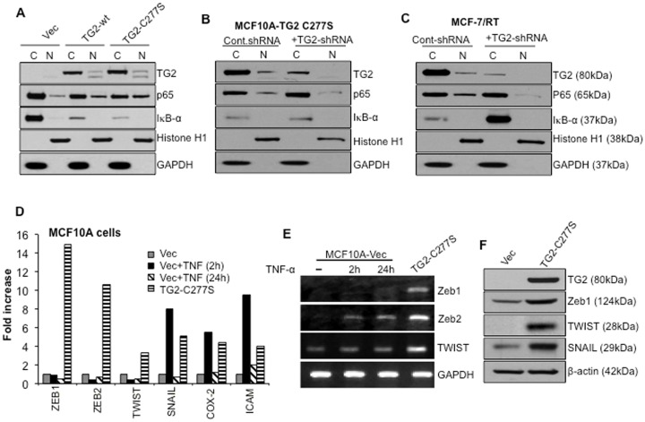 TG2 expression correlates with constitutive NF-κB activation. A- Western blot analyses of nuclear and cytosolic fractions prepared from vector, TG2-WT, and TG2-C277S-expressing MCF10A cells. Membranes were probed with either anti-TG2 or anti-p65/RelA antibodies, stripped, and reprobed with anti-IκBα, GAPDH or anti-histone antibodies to determine even protein loading and purity of cytosolic and nuclear fractions, respectively. The low IκBα protein levels in cytosolic fractions were related to TG2 expression, as suggested by the even β actin band in all the three cytosolic fractions (data not shown). B- Detection of p65/RelA in the nuclear fraction of TG2-C277S transfected MCF10A cells and C- in MCF-7/RT cells after transfection with either the control or TG2-specific shRNA. Membranes were reprobed with anti-IκBα, GAPDH or anti-histone antibodies to ensure the even loading and purity of cytosolic and nuclear fractions. D- Quantitative RT-PCR array showing relative changes in the expression of NF-κB target genes in TG2-C277S-transfected MCF10A cells and MCF10A-vector cells after stimulation with TNFα (10 ng/mL) for the indicated times. The Y-axis denotes the fold-expression, and the x-axis denotes the genes. Expression of GAPDH, β actin, and 18S ribosomal RNA was used to normalize the variable template loading. E- RT-PCR analysis for basal and TNFα-induced expression of selected NF-κB target genes in TG2-C277S and control vector-transfected MCF10A cells. F- Immunoblot analysis for basal expression of indicated NF-κB target genes in TG2-C277S and vector-transfected MCF10A cells. Results shown are from a representative experiment repeated at least 2 or 3 times with similar results.