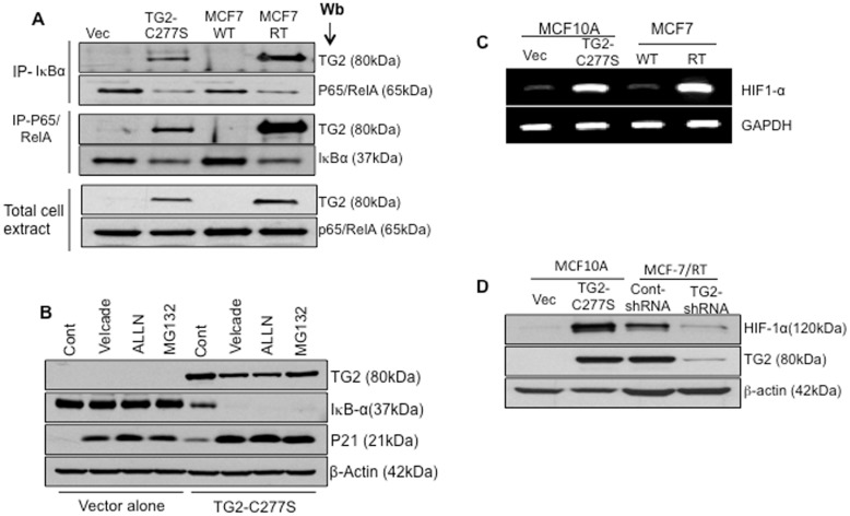 TG2 mediate IκBα degradation via non-proteasomal pathway and results in HIF-1α expression. A- Total cell extracts prepared from MCF10A-Vec, MCF10A TG2-C277S, drug-sensitive (MCF-7/WT) and drug resistant (MCF-7/RT) MCF-7 cell were immunoprecipitated with anti-p65/RelA or anti-IκBα antibody and immunoblotted with anti-TG2, anti- p65/RelA, or anti- IκBα antibody. Total cell extracts (15 µg protein) were also directly subjected to immunoblotting to determine TG2 and p65/RelA levels. B- MCF10A-Vec and MCF10A TG2-C277S cells were incubated with medium alone (Cont.) or medium containing the indicated proteasomal inhibitor [Bortezomib (20 nM), N-acetyl-leucyl-leucyl-norleucinal (ALLN) (50 µg/mL), and MG-132 (1 µM)] for 2 hours. At the end of incubation, cells extracts were prepared and subjected to immunoblot analysis, using anti-TG2, anti-IκBα and anti-p21 antibody (p21 served as a positive control) and β-actin to ensure equal protein loading. C- RT-PCR analysis showing the basal transcript level of HIF-1α in MCF10A-Vec, MCF10A TG2-C277S, MCF7-WT and MCF7/RT cells. Results shown are from a representative experiment repeated at least 2 times with similar results. D- Immunoblot analysis showing the basal HIF-1α and TG2 protein expression in MCF10A-Vec, MCF10A TG2-C277S, MCF7-WT and MCF7/RT cells under normoxic conditions.