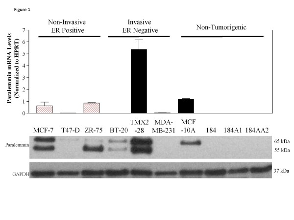 Paralemmin-1 is differentially expressed in breast epithelial cell lines. RNA and protein lysates were isolated from tumorigenic and non-tumorigenic breast cell lines. Top: Real time qRT-PCR shows mRNA expression of paralemmin-1; means and S.E. from three separate cell cultures are presented; ER-positive cell lines, (hatched bars), ER-negative cell lines (solid bars). Bottom: Protein lysates (15 μg) were probed for paralemmin-1 expression by Western immunoblotting. Image is a representative of at least three separate experiments with different biological samples.