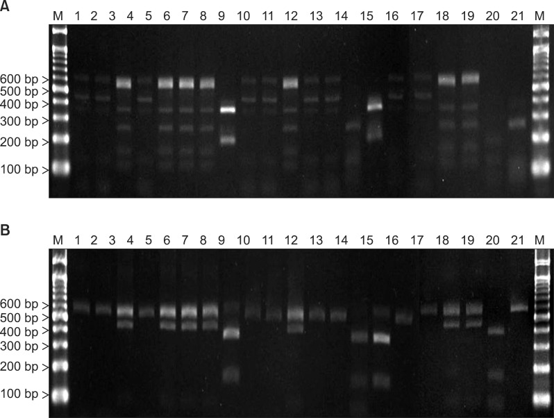 PCR-RFLP patterns of 26S rDNA PCR digested with restriction enzymes (A) Hha I, (B) BtsC I of 11 Malassezia standard strains in hyperpigmented lesions of 21 patients. Lanes: M: molecular Marker, 1: Malassezia globosa (CBS7966), 2: M. globosa (CBS7966), 3: M. restricta (KCTC7848), 4: M. globosa (CBS7966), 5: M. restricta (KCTC7848), 6: M. restricta (KCTC7848), 7: M. restricta (KCTC7848), 8: M. slooffiae (KCTC17431), 9: M. globosa (CBS7966), 10: M. globosa (CBS7966), 11: M. restricta (KCTC7848), 12: M. globosa (CBS7966), 13: M. globosa (CBS7966), 14: M. furfur (KCTC7743), 15: M. slooffiae (KCTC17431), 16: M. globosa (CBS7966), 17: M. globosa (CBS7966), 18: M. restricta (KCTC7848), 19: M. restricta (KCTC7848), 20: M. furfur (KCTC7743), 21: M. sympodialis (KCTC7985). PCR: polymerase chain reaction, RFLP: restriction fragment length polymorphism.