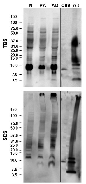 Immunoblot analysis of Aβ species from sequentially extracted human prefrontal cortical tissue lysates . Human hippocampi from Alzheimer's disease (AD), pathological aging (PA) and normal (N) cohorts were sequentially extracted with <t>TBS,</t> 2% <t>SDS</t> extracted lysates from human subjects. Representative immunoblots probed with 82E1 antibody are shown. Control lanes includes cell lysates expressing C99 (CTFβ) and recombinant Aβ1-42 (43 pmol). Aβ, amyloid β; SDS, sodium dodecyl sulfate; TBS, Tris buffered saline.