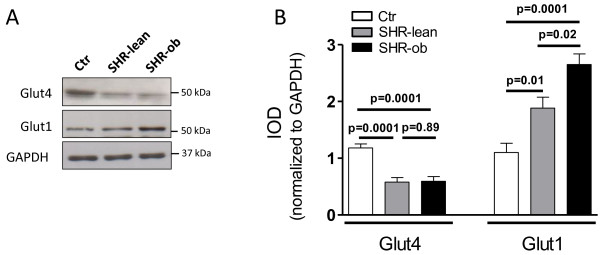 A) Representative western blots and B) quantification of glucose transporters Glut4 and Glut1 in controls (Ctr), SHR-lean and SHR-ob (n = 6 each). GAPDH was used as a loading control. Data are presented in means ± SEM.