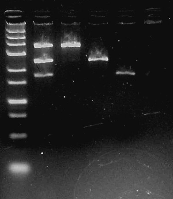 Agarose gel with PCR products from multiplex PCR for MTHFR 677 C > T , eNOS +894 G > T and eNOS −786 T > C . Lane 1 contains Fermentas O' GeneRuler® Ultra Low Range DNA Ladder (25 bp - 700 bp); Lane 2 contains multiplex PCR products with band sizes 178 bp, 248 bp and 371 bp; Lane 3 contains a positive control for eNOS +894 G > T with band size 371 bp; Lane 4 contains a positive control for MTHFR 677 C > T with band size 248 bp; Lane 5 contains a positive control for eNOS −786 T > C with band size 178; and Lane 6 is a negative control.