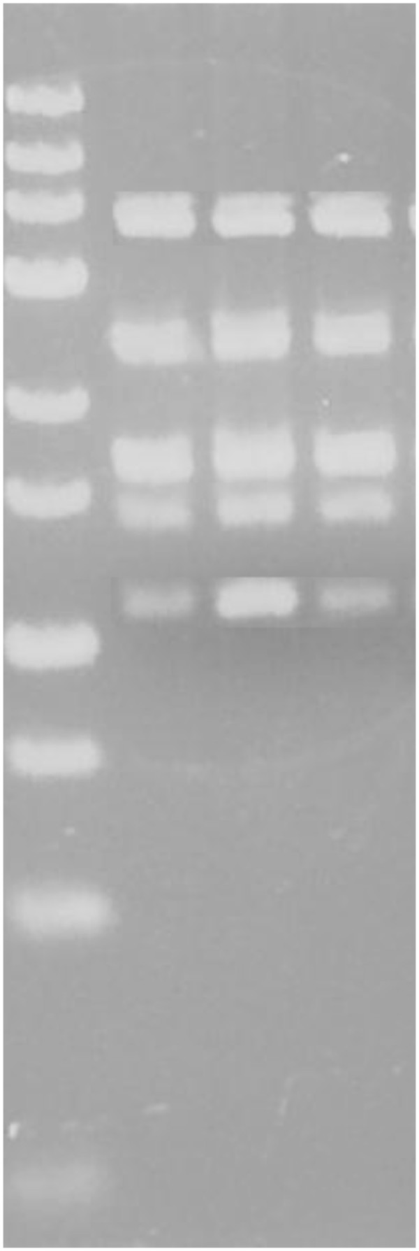 Agarose gel with PCR–RFLP products for analysis of MTHFR 677 C > T and eNOS +894 G > T and eNOS −786 T > C . Lane 1 contains <t>Fermentas</t> O' GeneRuler® Ultra Low Range DNA Ladder (25 bp - 700 bp); Lanes 2, 3 and 4 contain multiplex PCR-RFLP products digested with 1 U of NEB® <t>BanII</t> restriction enzyme (NEB®, England), 1 U Fermentas Fast Digest® HinfI restriction enzyme (Fermentas, Lithuania) and 1 U Fermentas Fast Digest® MspI restriction enzyme (Fermentas, Lithuania), respectively. The band sizes were 371 bp, 248 bp, 178 bp, 130 bp and 118 bp for all lanes. This indicates that the sample is a TT genotype for MTHFR 677 C > T, GG genotype for eNOS +894 G > T , and TT genotype for eNOS −786 T > C.