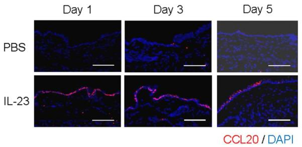 CCL20 expression in mouse epidermis is upregulated within 24 hr of IL-23 injection IL-23 was injected into ears of WT mice at day 0, 2, and 4. Mice were euthanized on the indicated days and ears were stained with anti-CCL20 antibody (red) and DAPI (nuclear counterstain in blue). Isotype control staining showed no epidermal staining with either IL-23 or PBS-injected ears (data not shown). Scale bar = 50 μm.