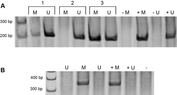 Representative figure of the methylation analysis. A : Methylation status of MMP-2 in ameloblastoma. M: PCR products when amplified by methylated primers (205 bp); U: PCR products when amplified by unmethylated primers (206 bp); +M: positive control for methylated reaction; +U: positive control for unmethylated reaction. -M and -U: negative controls without DNA. Lines 1 to 3 represent DNA from ameloblastoma samples. B : Methylation status of MMP-9 in ameloblastoma. DNA samples were digested by the AciI restriction enzyme followed by PCR, flanking the restriction sites. Absent band indicates unmethylated profile (U) due to DNA cleavage by the restriction enzyme. Presence of the PCR band represents methylated profile (M) of the MMP-9 gene. +M: methylated positive control; +U: unmethylated positive control; - : negative control without DNA.
