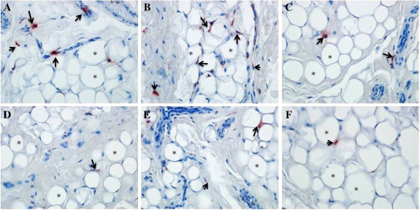 Immunohistochemistry using human anti-CD68 for macrophages for epicardial, mediastinal and subcutaneous adipose tissues of obese CAD and control groups. CD68+ cells (macrophages) are observed in the epicardial, mediastinal and subcutaneous adipose tissues of obese CAD group ( A , B and C ) and control group ( D , E and F ). CD68+ cells (upwards arrow) between normal and large adipocytes (black asterisks) are identified in the adipose tissues. These findings were endorsed by qRT-PCR of CD68 mRNA expression in all three adipose tissues of the study group. Magnification: x 40 for A , B , C , D , E and F.