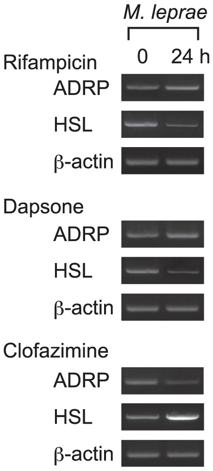 Expression of ADRP and HSL is modulated by clofazimine in THP-1 cells infected with M. leprae . THP-1 cells were cultured in six-well plates with culture medium containing either 8.0 µg/ml rifampicin, 5.0 µg/ml dapsone or 2.0 µg/ml clofazimine with M. leprae infection (MOI = 10). After incubating for 24 h, total RNA was purified and RT-PCR analysis of ADRP, HSL and β-actin was performed. Representative results from three independent experiments are shown.