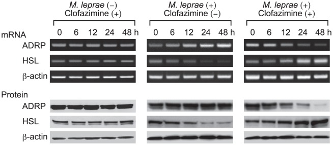 Only M. leprae -infected THP-1 cells are susceptible to clofazimine. THP-1 cells were cultured in six-well plates with or without 2.0 µg/ml clofazimine in the presence or absence of M. leprae infection (MOI = 10). After incubating for the indicated period of time, total RNA and total cellular protein were purified and RT-PCR and Western blot analyses of ADRP, HSL and β-actin were performed. Representative results from three independent experiments are shown.