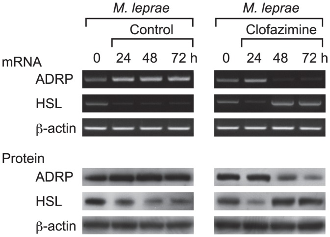 Clofazimine counteracts M. leprae to modulate ADRP and HSL expression levels. THP-1 cells were cultured in six-well plates and infected with M. leprae (MOI = 10) for 24 h. Clofazimine (2.0 µg/ml) was added and incubation continued another 24 and 48 h (48 and 72 h from M. leprae infection). Total RNA and total cellular protein were purified and RT-PCR and Western blot analyses of ADRP, HSL and β-actin were performed. Representative results from three independent experiments are shown.