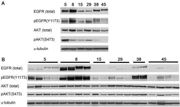 In vitro and in vivo expression of EGFR, pEGFR, pAKT and AKT in 6 HNSCC lines. Cell lines were both cultured as cell lines ( in vitro ) and grown as xenograft tumors ( in vivo ) and expression levels were determined with western blot. Expression of α-tubulin was used as loading control. A ) In vitro expression of EGFR, pEGFR, pAKT and AKT. B ) In vivo expression of EGFR, pEGFR, pAKT and AKT. Number of harvested tumors ranged from 2 to 4 per cell line.