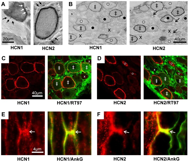 <t>HCN1</t> and HCN2 immunostaining. A and B : ABC immunostaining. A: with X100 objective, HCN1 and HCN2 ring staining (white arrows) is over the neuron perimeter and not in satellite cells (black arrows) thus probably membrane associated, (sn = satellite cell nucleus). B: in adjacent sections HCN1 and HCN2 show co-localisation, with some differences in intensity or location. Symbols in B : ‡ ring staining for both HCN1 and HCN2; x neither, o clear HCN1 ring but weaker HCN2; • clear HCN2 ring but weaker HCN1. C–F: Double immunofluorescence staining in L5 DRG neurons. C and D : HCN1 (C) or HCN2 (D) ring staining (red) are present in large, myelinated, neurofilament-rich (RT97 positive, green) neurons. There is also cytoplasmic HCN2 staining in a few RT97 negative, unmyelinated, small neurons (fine arrow in D). Symbols in C and D indicate examples of staining with: ‡ both antibodies, x neither, o clear HCN2 cytoplasmic but not neurofilament staining. E and F: Representative X100 images of HCN1 (E) and HCN2 (F) (in red) with Ankyrin G (AnkG, green) to indicate the nodes of Ranvier (arrows) in longitudinal sections of normal L5 dorsal root nerve. Yellow is indicative of co-localisation.
