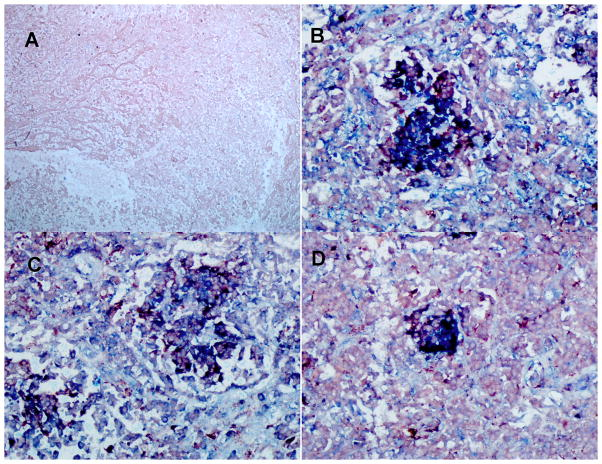TB patients carrying the two-locus genotype -2518 MCP-1 GG -1607 MMP-1 2G/2G express MCP-1, MMP-1, and MMP9 We used double IHC analysis of MCP-1 or MMP-1 or MMP-9 and CD68 in paraffin-embedded diseased lung from six TB patients who underwent surgery to remove damaged tissue. We are showing representative data. A: negative control (irrelevant antibodies isotype control); B: MCP-1 (blue) and CD68 (red); C: MMP-1 (blue) and CD68 (light red); D: MMP-9 (blue) and CD68 (light red). Images were acquired at 200X total magnification. IHC analysis shows granulomas with CD68-positive cells (macrophages) expressing copious amounts of MCP-1, MMP-1, and MMP-9.
