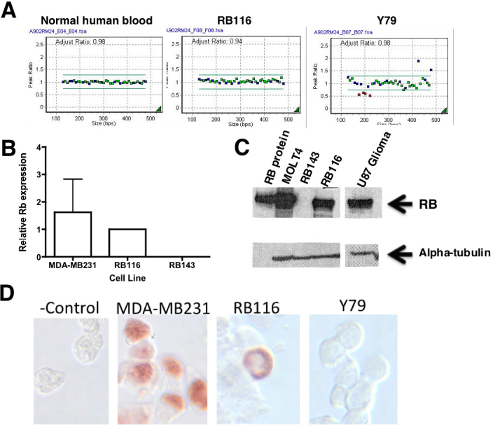 The RB1 gene and RB1 protein are expressed in RB116 cells. A : Multiplex ligation-dependent probe amplification RB1 (MLPA) is shown for RB116 cells. Gene dosage analysis shows a normal copy number (2) corresponding to all probes, with no duplications or deletions. Probes targeted 23 of RB1's 27 exons and three nearby genes ( DLEU1, CHC1L, ITM2B ). Y79 cells, with a known multiexon deletion, served as a positive control. Normal human peripheral blood served as a negative control. B : Quantitative reverse transcriptase polymerase chain reaction (qRT-PCR) analysis shows RB1 mRNA expression in RB116 cells. RB116 cells were evaluated alongside RB1-negative RB143 cells and RB1-positive MDA-MB231 breast cancer cells. RB116 cell expression was set at 1.0. The experiment was repeated three times and the error bars show standard deviation. No p values were calculated, as this was an experiment to determine presence or absence of RB1 and not meant to be comparative between cell lines. RB1 mRNA (mRNA) was detected in both RB116 and MDA-MB231 cells. C : western blot analysis detects RB1 protein in RB116 cells. Western immunoblotting was performed on RB116 cells and detected the expected p110 RB1 band that was identical to the positive controls (purified RB1 protein, MOLT4 human leukemia cells, and <t>U87</t> human glioma cells). No band was seen in the lane containing lysate from the negative control (RB1 negative RB143 cells). The blot was reprobed with alpha-tubulin to ensure equal protein loading of the cell lysates. D : Immunocytochemistry demonstrates perinuclear localization of RB1 protein in RB116 cells. RB116 cells were compared with the negative control (Y79 cells) and the positive control (MDA-MB231 cells). The experiment was repeated three times. Note the perinuclear localization of RB1 in RB116 cells. A control slide of RB116 cells received an isotype control antibody instead of the anti-RB1 antibody.