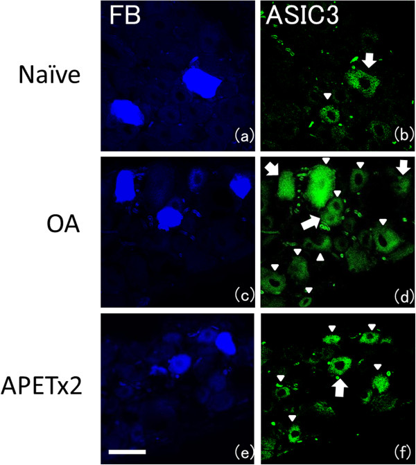 Fast Blue labeling and immunohistochemistry staining for ASIC3 : (a-b) Naïve- model, (c-d) OA-model, (e-f) APETx2 administration to OA-model in early phase. Photos in each row are the same DRG. In ( b ),( d ),( f ), large arrows indicate Fast Blue labeled, ASIC3 immunoreactive (ASIC3-ir) DRG cells, while ASIC3-ir cells that were not labeled by Fast Blue are indicated by small arrowheads. More than 100 FB-labeled neurons were analyzed from 4 rats in each group. The percentage of ASIC3-ir knee joint afferents was 18 ± 3% (mean ± SD) in naïve models, 46 ± 4% in OA-models ( p = 0.003), and 20 ± 5% in the early-phase APETx2 group ( p = 0.006), respectively. Scale bar: 50 μm.