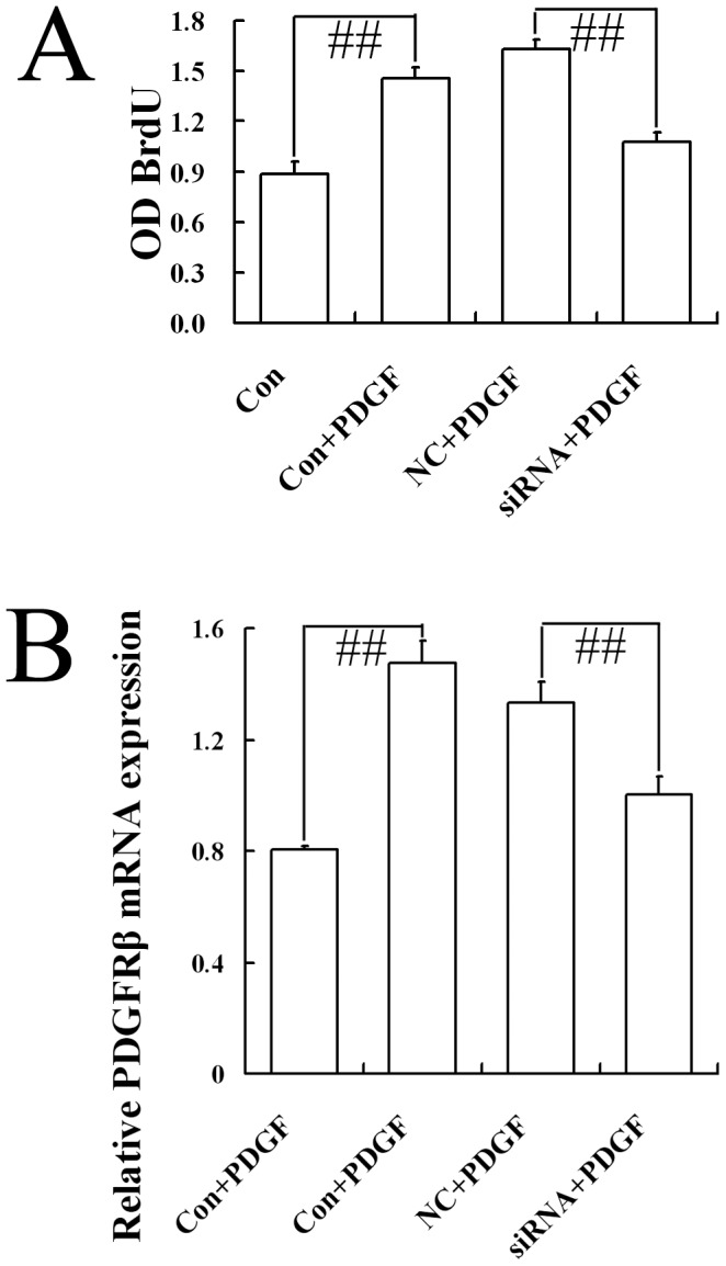 """Effect of CB1-RNAi-LV on the proliferation of primary hepatic stellate cells. ( A ) The statistical results of the optical density (OD) value of BrdU incorporative cells in HSCs (named Con), HSCs with PDGF (named Con+PDGF), HSCs with NC-LV and PDGF (named NC+PDGF), HSCs with CB1-RNAi-LV and PDGF (named siRNA+PDGF) by ELISA method. """"# #"""" p"""