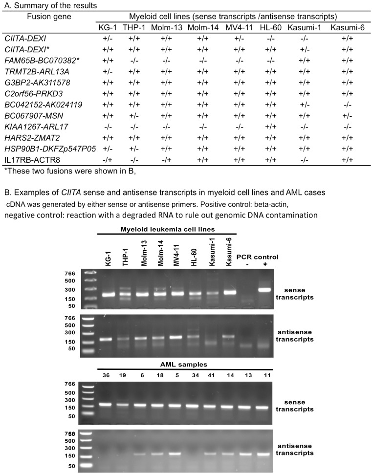 Validation of sense and antisense fusion transcripts by strand-specific RT-PCR. A. Summary for RNA samples from 8 myeloid cell lines. B. CIITA-DEXI sense and antisense fusion transcripts detected in myeloid cell lines and AML samples. +: positive control with beta-actin; -: netative control without RNA templates.