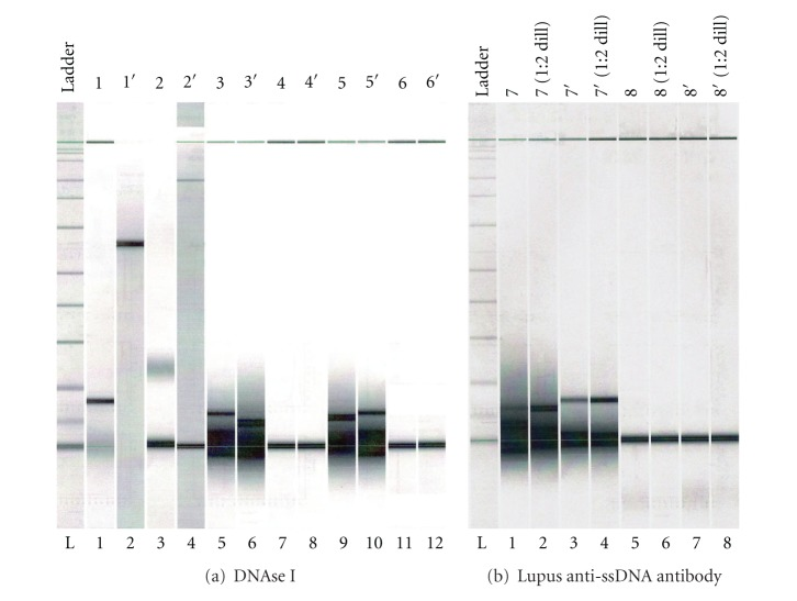 Detection of hydrolysis of ss herring sperm DNA by Agilent <t>2100</t> Bioanalyzer (DNA7500 microchip) digital analysis. *Agilent 2100 Lab-on-Chip digital analysis comparison of hydrolysis of ss herring sperm DNA (obtained by heating and fast cooling) by DNAse I control and anti-poly-(dT) ssDNA antibody sample purified from lupus patient serum demonstrates that lupus anti-poly-(dT) ssDNA antibody is hydrolytic. (a) Lane 1: ss herring sperm DNA with DNAse I at T = 0. Lane 2: ss herring sperm DNA, no DNAse I. Lane 3: ss herring sperm DNA with DNAse I at T = 5 min. Lane 4: lambda phage, no DNAse I. Lanes 5, 6: ss herring sperm DNA with DNAse I at T = 30 min. Lane 7: lambda phage with DNAse I at T = 30 min. Lanes 8: lambda phage, no DNAse I. Lanes 9, 10: same as 5, 6. Lanes 11, 12: DNAse I, no substrate. (b) Lanes 1–4: ss herring sperm DNA with lupus anti-ssDNA antibody at T = 3 hrs. Lanes 5–8: lambda phage DNA, no antibody.