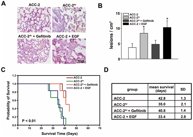 Prevention of ACC Ar and EGF-induced metastasis in vivo by <t>gefitinib.</t> For in vivo metastasis analyses, the pulmonary metastatic models of mice were established by injected with ACC cells with indicated treatment by tail vein. The ACC-2 cells were pretreated with EGF (10 ng/ml) for 48 h, and gefitinib (1 µM) for 1 h, as well as ACC-2 Ar were used in the assays. ACC-2 parental cells were also injected as Control. A, Representative hematoxylin and eosin-stained histological sections of lungs from the mice injected with ACC cells. B, Quantitative analysis of pulmonary metastasis from mice as described above. Lesions of 0.1 mm or higher were counted from 20 slides per treatment (Mean ± SE, n = 5 for each group, * p
