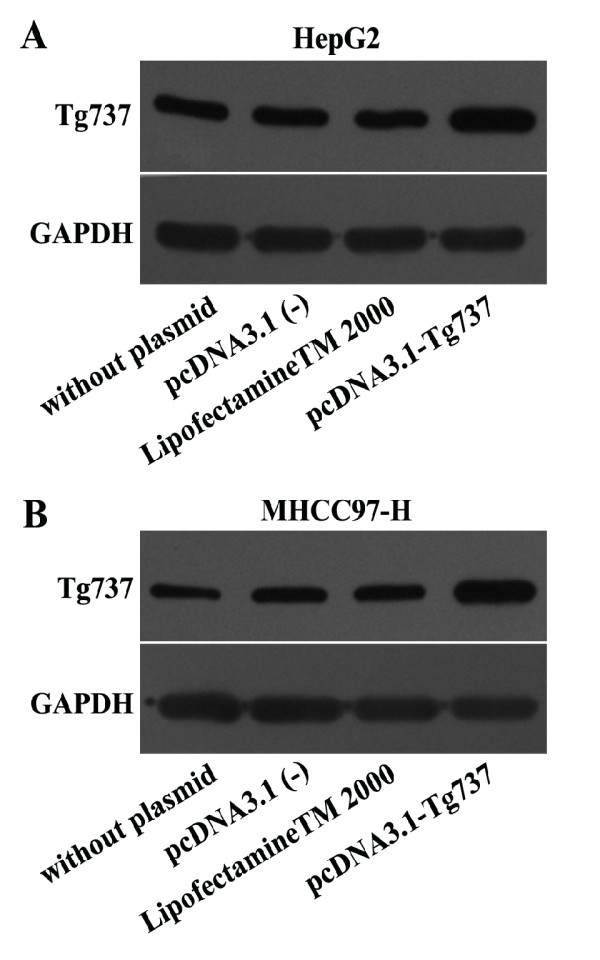 Western blot assay was performed to determine the expression levels of Tg737 in the different cells. The HepG2 and MHCC97-H cells were transiently transfected with the pcDNA3.1-Tg737 plasmid. To exclude liposome/vector-related effects, HepG2 and MHCC97-H cells transfected with pcDNA3.1 (−) or incubated with LipofectamineTM 2000 alone were used as controls. HepG2 and MHCC97-H cells without plasmid transfection also served as blank controls. The cells were incubated with fresh DMEM (1% FBS) for 12 h under hypoxia, then lysed and subjected to immunoblot analysis.