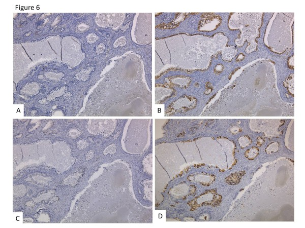 Immunohistchemical staining. CK7 ( A ) and Muc-5AC ( C ) were negative. CK20 ( B ) and <t>Muc-2</t> ( D ) were positive.