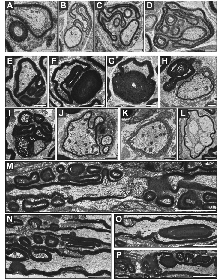 Frabin/Fgd4-deficient mice form aberrant PNS myelin. Fgd4 − / − mice display aberrant myelin features during early steps of myelination ( A–D : post-natal Day 5; sciatic nerve) and in myelin maintenance ( E–G , I and K : 80 weeks old mice; H , J and M–P : 60 weeks old mice; L : 10 weeks old mice; plantaris nerve), including simple myelin outfoldings ( A ), redundant myelin ( B ), complex myelin outfoldings ( E ) and highly complex myelin outfoldings ( C and D ), redundant myelin loops outside ( F ) and protruding into the axon ( G ), degradation of myelin ( I ), signs of demyelination ( K ) and remyelination ( H and J ) and rarely polyaxonal myelination ( L ). Aberrant myelin features tend to be located in the vicinity of nodes of Ranvier and Schmidt–Lanterman incisures ( M , N and P ). ( A–L ) Cross-sections. ( M–P ) Longitudinal sections. Scale bars = 1 µm ( A–L ); 5 µm ( M–P ).