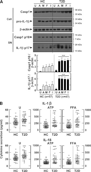 Upregulated activation of casapse-1, IL-1β maturation, and production of IL-1β and IL-18 in MDMs from patients with type 2 diabetes (T2D) compared with healthy controls (HCs). MDMs were isolated from T2D patients ( n = 47) and HCs ( n = 57) were primed with LPS (10 ng/mL) for 4 h and stimulated with various ligands: ATP (1 mmol/L for 1 h), MSU (100 μg/mL for 6 h), FFAs (200 μmol/L for 16 h), and IAPP (10 μmol/L for 16 h). A : Western blotting analysis to determine caspase-1 (Casp1) and IL-1β protein levels (cell lysates [Cell], Casp1 p45, and pro-IL-1β [31 kDa]; supernatants [SN], cleaved Casp1 p10, and mature IL-1β [17 kDa]). The intensity of each band for each protein was quantified and normalized to the housekeeping gene β-actin ( A , bottom). Data are expressed as means ± SEM. B : ELISA of IL-1β (top) and IL-18 (bottom) levels in culture supernatants. Cells were left untreated (U; left) or treated with the indicated ligands. Results are expressed as the mean of triplicate samples. Data are representative of two independent experiments. ***P