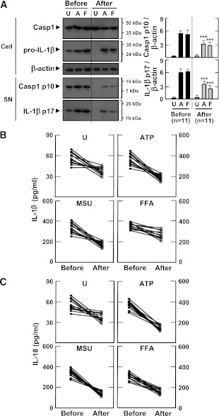 Metformin treatment inhibits the secretion of mature IL-1β and caspase-1 activation in MDMs from patients with type 2 diabetes (T2D). MDMs were isolated from T2D patients ( n = 11) before (Before) and after (After) treatment with metformin for 2 months. MDMs were primed with LPS (10 ng/mL) for 4 h, and then stimulated with various ligands: ATP (1 mmol/L for 1 h), MSU (100 μg/mL for 6 h), and FFAs (200 μmol/L for 16 h). A : Western blotting analysis to determine caspase-1 (Casp1) and IL-1β protein levels (cell lysates [Cell], Casp1 p45, and pro-IL-1β [31 kDa]; supernatants [SN], cleaved Casp1 p10, and mature IL-1β [17 kDa]) ( A , right). The intensity of each band for each protein was quantified and normalized to the housekeeping gene β-actin. Data are expressed as means ± SEM. ***P