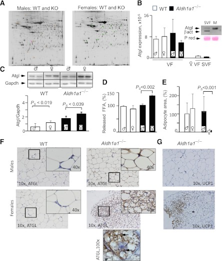 Sex-specific proteome and Atgl protein levels in VF of WT and Aldh1a1 −/− mice. A : Representative images of the DIGE proteomic gels comparing cy2-, cy3-, and cy5-stained proteins from VF isolated from WT and Aldh1a1 −/− males (180-day HF groups). Four gels from four pairs of different WT and Aldh1a1 −/− VF pads were run in each experiment. Spots, 176 in male ( left panel ) and 167 in female ( right panel ) groups, were different between WT and Aldh1a1 −/− mice without false discovery rate correction (FDRC) and 13 proteins after FDRC analysis. The identified 13 spots are shown on the gel image as a square around a spot that was significantly changed by at least 1.5-fold between groups with P ≤ 0.05 after FDRC using an independent t test. Atgl mRNA expression levels were measured by TaqMan ( B , VF group), and Atgl protein levels ( C ) were analyzed by Western blot in VF from WT and Aldh1a1 −/− male and female mice (all mean ± SD; n = 4) on an HF diet as well as in SVF fraction isolated from three age-matched females on a regular diet ( B , SVF VF group for mRNA expression). Inset in B confirms negligible Atgl protein levels in SVF compared with mature (M) adipocytes from same WT female using Western blot. Inset in C shows Atgl protein levels in two animals from each group. gapdh, glyceraldehyde-3-phosphate dehydrogenase. *Significant difference between WT vs. KO groups. D : Release of NEFA from VF explants (0.1 g WT males and females, 0.08 g knockout [KO] males, and 0.06 g KO females using 5 mL medium/g fat) stimulated with isoproterenol for 1.5 h in DMEM containing 2% delipidated BSA. VF was isolated from three mice per group. Data were normalized to the levels seen in WT male mice (100%). FFA, free fatty acid. E : Area of unilocular adipocytes was quantified from the images (original magnification ×10) shown in F . Total of 300 adipocytes were quantified per group. F : Representative Atgl staining of paraffin-embedded VF from WT and Aldh1a1 −/− male and female mice (all n = 4; mean ± SD) on an HF diet (180 days). In Aldh1a1 −/− female mice, Atgl protein was found in multilocular adipocytes. 10×, 40×, and 100× indicates magnification. Arrows in ×100 original magnification group show cytosolic and perilipid droplet Atgl staining in a multilocular adipocyte. G : Representative Ucp1 staining of same sections from Aldh1a1 −/− male and female mice. Brown Ucp1 staining was associated with multilocular adipocytes. P S , significantly different between male and female Aldh1a1 −/− mice. (A high-quality digital representation of this figure is available in the online issue.)