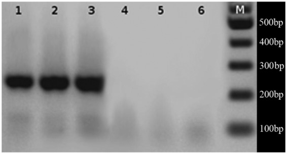 Amplification of local Alexandrium strains ACC01, ACC02 and ACC07 using species - specific primers; A. tamarense (lanes 1, 2 and 3) and A. catenella (lanes 4, 5 and 6). M = 100-bp <t>DNA</t> size marker. Species-specific amplification in the rDNA region using A. catenella and A. tamarense primers were carried out in a MaxiGene Gradiente thermocycler (Axygen) in 1× PCR buffer, 20–50 ng of genomic DNA template, 3 mM MgCl 2, 100 µM each <t>dNTP,</t> 0.1 µM each primer and 0.4 U of TopTaq DNA polymerase (Fermentas) in a 10-µL reaction volume. Five microlitres of each PCR product were analysed in a 2 % agarose gel. A Fermentas GeneRuller™ 100-bp DNA ladder was used for size estimation of amplified fragments.