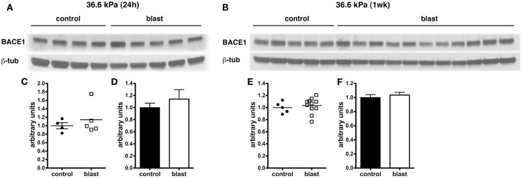 Western blotting was performed on hemi brain Triton X-100 extracts from sham exposed (controls) or rats exposed to 36.6 kPa blast injury harvested at 24 h (A) or 1 week post-blast exposure (B) . The top panel in each set shows blotting with an antibody that recognizes BACE1. In the lower panels the blots were reprobed for β-tubulin (β-tub) as a loading control. Levels of BACE1 are expressed as the ratio of BACE1 to β-tubulin (±SEM) for the experiments in  (A)  in  (C,D)  and for  (B)  in  (E,F) . Note the lack of change in BACE1 levels in rats exposed to a 36.6 kPa blast at either 24 h or 1 week.
