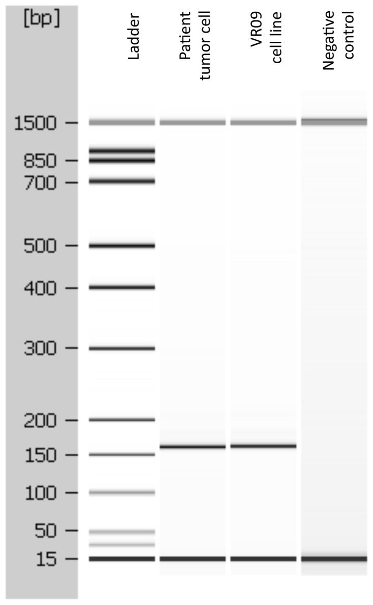 EBV positivity in the original tumor and in the VR09 cell line. PCR products analysis by Agilent 2100 Bioanalyzer showed the presence of the same 151 bp specific amplicon for EBV RPMS1 gene, thus demonstrating that EBV infection was present in the original cells from patient. A normal DNA from pancreas was used as negative control.