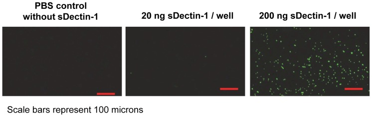 Binding of zymosan to sDectin-1. 20 or 200 ng cHis-sDectin-1 were coated on Maxisorp plates followed by FITC-zymosan. The plate was washed with PBS and imaged using a fluorescent microscope. Representative images from duplicate experiment are shown here.
