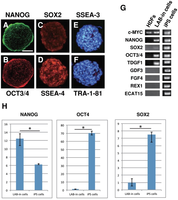 LAB-incorporated cell clusters express pluripotency markers. Immunocytochemistry for (A) NANOG, (B) OCT3/4, (C) SOX2, (D) SSEA-4, (E) SSEA-3, and (F) <t>TRA-1-81</t> in LAB-incorporated cell clusters. (E–F) DAPI. (G) RT-PCR analysis on HDFs, LAB-incorporated cell clusters after 12 days of incorporation, and iPS cells. (H) The relative mRNA expression levels of NANOG , OCT4 , and SOX2 were quantified with LAB-incorporated cells and iPS cells by quantitative RT-PCR and normalized relative to the expression of endogenous human GAPDH . Error bars indicate the standard deviation. * p