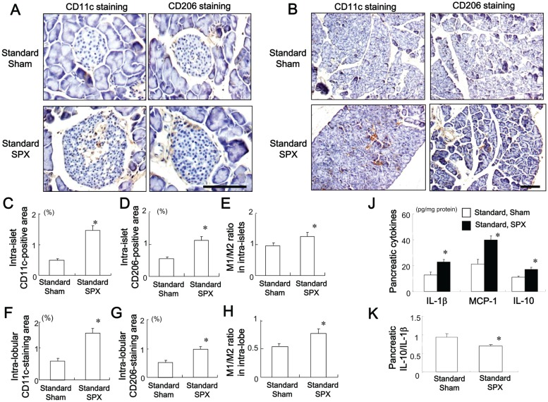Effects of SPX on the infiltration of M1 and M2 macrophages and on inflammatory responses in the pancreas. ( A and B ) Representative images of CD11c staining (left) and CD206 staining (right) in intra-islet areas ( A ) and intra-lobular areas ( B ) in pancreas sections from each group. ( C−E ) Percentage of CD11c-positive area ( C ) and CD206-positive area ( D ) and M1/M2 ratio ( E ) in intra-islet areas. ( F−H ) Percentage of CD11c-positive area ( F ) and CD206-positive area ( G ) and M1/M2 ratio ( H ) in intra-lobular areas. ( J and K ) Content of pro- and anti-inflammatory cytokines ( J ) and interleukin (IL)-10/IL-1β ratio ( K ) in the pancreas in each group ( n = 6). * P
