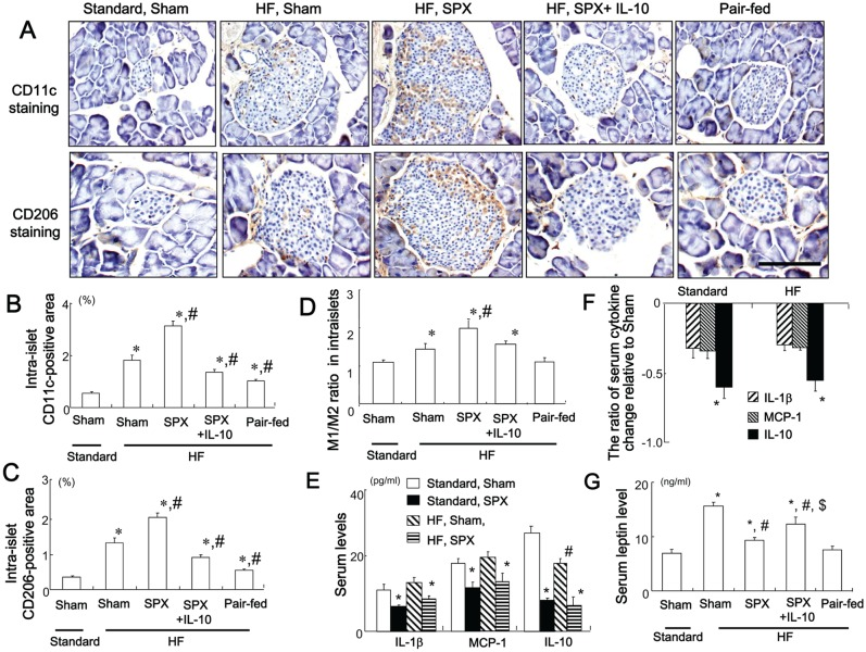 Systemic administration of IL-10 diminishes SPX-induced fat accumulation, infiltration of macrophages, and pro-inflammatory responses in the islets. ( A ) Representative images of CD11c staining (upper sections) and CD206 staining (lower sections) in intra-islet areas in pancreas sections from each group. Scale bar = 100 µm. ( B−D ) CD11c-positive areas ( B ), CD206-positive areas ( C ), and M1/M2 ratios ( D ) in the islets in each group ( n = 6). * P