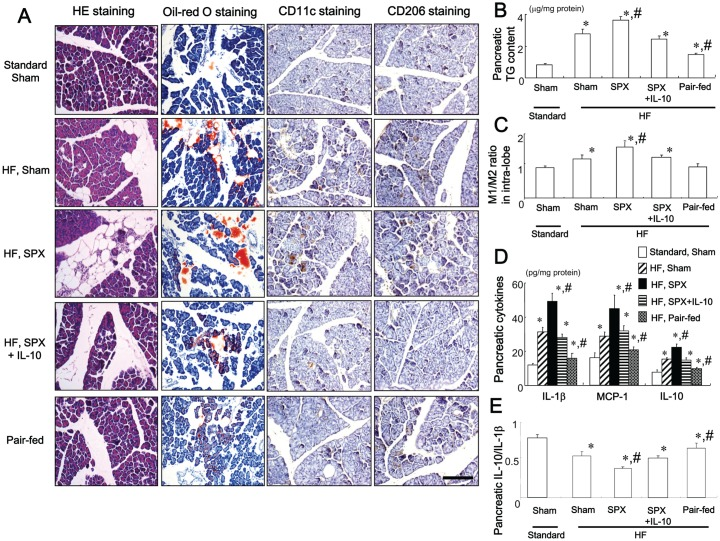 Systemic administration of IL-10 diminishes SPX-induced fat accumulation, infiltration of macrophages, and pro-inflammatory responses in the pancreas. ( A ) Representative images of H E staining, oil-red O staining, CD11c staining, and CD206 staining in intra-lobular areas in pancreas sections from each group. Scale bar = 100 µm. ( B−E ) TG content ( B ), M1/M2 ratios ( C ), content of pro- and anti-inflammatory cytokines ( D ), and IL-10/IL-1β ratios ( E ) in the pancreas of each group ( n = 6). * P