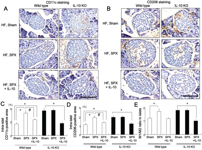 SPX has little effect on the infiltration of macrophages in islets of IL-10-deficient mice. ( A and B ) Representative images of CD11c staining ( A ) and CD206 staining ( B ) in intra-islet areas of pancreas sections from each group. Scale bar = 100 µm. ( C−E ) CD11c-positive areas ( C ), CD206-positive areas ( D ), and M1/M2 ratios ( E ) in the islets in each group ( n = 6). * P