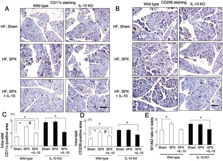 SPX has little effect on the infiltration of macrophages in intra-lobular area of IL-10-deficient mice. ( A and B ) Representative images of CD11c staining ( A ) and CD206 staining ( B ) in intra-lobular areas in pancreas sections from each group. Scale bar = 100 µm. ( C−E ) CD11c-positive areas ( C ), CD206-positive areas ( D ), and M1/M2 ratios ( E ) in intra-lobular areas in each group ( n = 6). * P