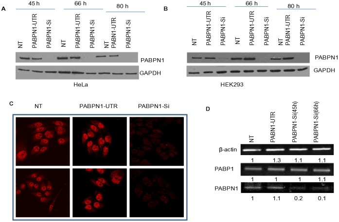 Knockdown of PABPN1 in human cells. HeLa and/or HEK293 cells were grown on 35 mm plates to approximately 30% confluence and transiently transfected with PABPN1-Si or PABPN1-UTR RNAi for indicated length of time. Non transfected (NT) control cells were also maintained in culture for the same duration as transfected cells. (A, B) Following transfection, cells were harvested at 45 h, 66 h and 80 h in Laemmli buffer. Whole cell extracts from Si, UTR, and NT HeLa (A) and HEK293 (B) cells were analyzed for PABPN1 protein by western blotting; GAPDH was used as the loading control. (C) Forty five hours after transfection, HeLa cells grown on coverslip were fixed with Para-formaldehyde and processed for immunostaining with PABPN1 specific antibody and counterstained with Texas-red-conjugated secondary antibody. Processed specimens were then examined with a confocal microscope. Images from two different sections of the slide are shown here. (D) Forty five hours and sixty six hours after transfection, RNA was extracted from HeLa cells using Trizol and reverse transcribed; cDNA thus made were used for PCR with primers specific to β-actin, PABP and PABPN1. Samples from PABPN1-UTR Si and non transfected (NT) cells were collected at 66 h time point. The bands on the gel representing the PCR products were scanned and quantified as described in Materials and Methods . The band intensities are shown in arbitrary unit.