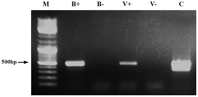 Demonstration of dsRNA transmission from adult bee to Varroa . RT-PCR was performed on RNA extracted from a bee that had ingested dsRNA-GFP (B+) and from an untreated bee (B−). V+ and V− represent amplification of RNA extracted from Varroa parasitizing dsRNA-GFP-treated bees and untreated bees, respectively. M = size markers. C = positive control (GFP-carrying plasmid).