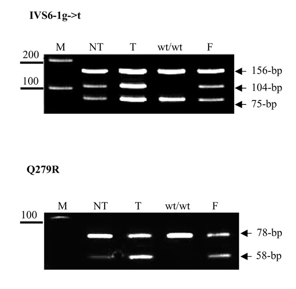 Mutation analysis in different liver regions. DNA was extracted from different liver regions and amplified by PCR. PCR products were digested with either Alu I to detect IVS6-1g- > t or with Msp I to detect Q279R. For IVS6-1 g- > t, the same heterozygous pattern is seen in both the reverted nodule (NT), tumor section (T) and fibroblast DNA (F), showing 3 bands, one at 156-, another at 104- and the last at 75-bp. The control (wt/wt) shows two bands, one at 156- and the other at 75-bp, indicating the absence of IVS6-1g- > t (M: molecular weight marker, 100- and 200-bp). For Q279R both the 78- and 58-bp bands are seen in the tumor section (T) and fibroblast DNA (F) indicating an heterozygous genotype while only the 78-bp wild-type band is seen in the control (wt/wt). In the region suspected of reversion (NT), a strong 78-bp wild-type band is seen with a weak 58-bp mutated band (M: molecular weight marker, 100-bp).