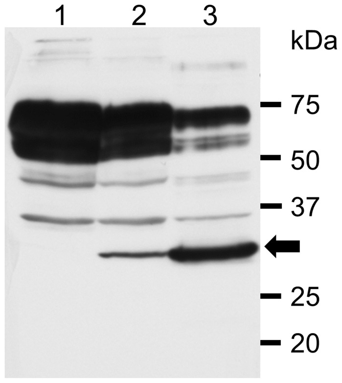 The detection of virus antigen in PSAF/HeLa-R cells by Western blotting. The anti-SAFV-3 antiserum detected the viral antigen of about 28∼30 kDa (arrow) in the lysates of PSAF/HeLa-R cells cultured for 30 days (5 passages) (lane 2) and HeLa-N cells infected with SAFV-3 (18 hours p.i.) used for a positive control (lane 3). The band of viral antigen was not detected in the lysate of HeLa-R cells used for a negative control (lane 1).