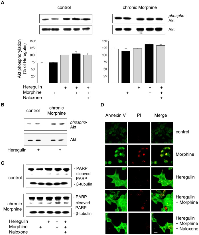 Regulation of cell survival and apoptosis by Morphine. ( A ) Determination of Akt activation in control and chronically Morphine (10 µM; 5d)-treated cells. Cells were incubated for 5 min at 37°C in the presence or absence of Morphine (10 µM), Naloxone (100 µM) and Heregulin (40 ng/ml), before Akt phosphorylation was determined by Western blot using a phosphor-specific antibody. The overall amount of Akt was determined by a phosphorylation-insensitive antibody. Insets show representative Western blots of the corresponding proteins (60 kDa) and β-tubulin (loading control). Immunoreactive bands were quantified and normalized to Heregulin-stimulated values in control cells, which was set to 100%. The data shown are from n = 4 independent experiments. ( B ) Comparison of basal and Heregulin (40 ng/ml)-stimulated Akt activation in control and Morphine (10 µM; 5d)-treated cells. Samples were run on the same gel and stained for phospho-Akt, total Akt and β-tubulin as loading control. Note that chronic morphine treatment increases basal and Heregulin (40 ng/ml)-stimulated levels of Akt phosphorylation. ( C ) Determination of PARP cleavage in BT474 cells. Cells were cultured in the absence (control) or presence of Morphine (10 µM; 5 d), before cells were washed and grown for an additional 6 h in serum-free Medium either in the absence or presence of Heregulin (40 ng/ml) Morphine (10 µM) and Naloxone (100 µM) as indicated. Samples were analysed by Western blot using an antibody recognizing full length (116 kDa) and cleaved (89 kDa) PARP. The same samples were blotted for β-tubulin (loading control). ( D ) Determination of apoptosis by Annexin V/propidium iodide staining. BT474 cells were cultured on coverslips for 5 d in the presence or absence of Morphine (10 µM), Naloxone (100 µM) and Heregulin (40 ng/ml) alone or in combination as indicated. Cells were sequentially stained with Annexin-FITC (green), propidium iodide (red), fixed and analysed by confocal microscopy. Bar: 20 